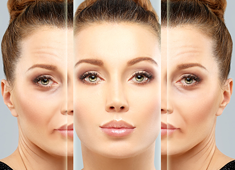 Wrinkles, fine lines treatment and fillers