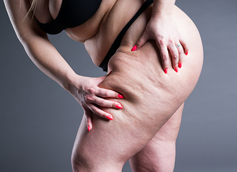 WEIGHT LOSS/OBESITY SURGERY/BARIATRIC