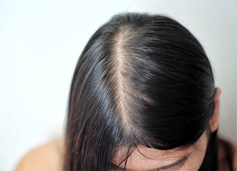 Parting Baldness in Females