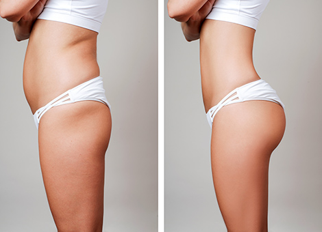 Saggy buttocks/buttock lift/gluteal augmentation and lift