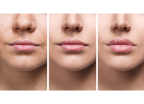 Thick Lips Reduction/Lip Reshaping