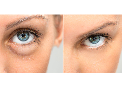 Under-eye bag removal treatment