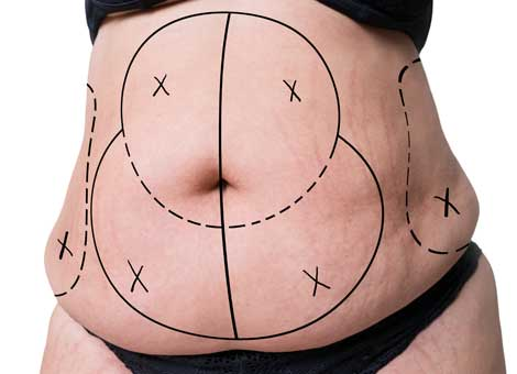 FAT REDUCTION SURGERY/LIPOSUCTION