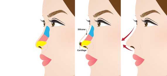 Depressed Nose / Flat Nose Surgery