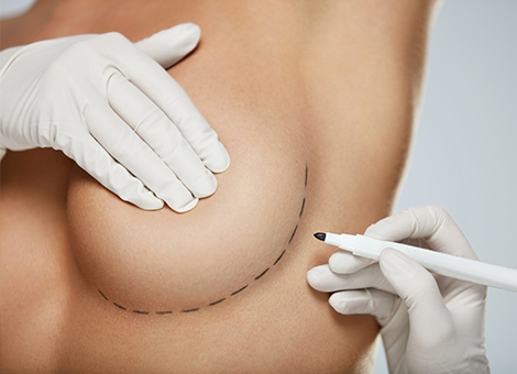 Breast Reshaping